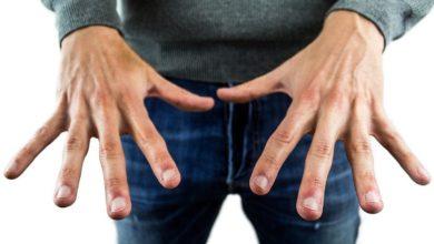 Photo of Weiße Flecken Fingernägel